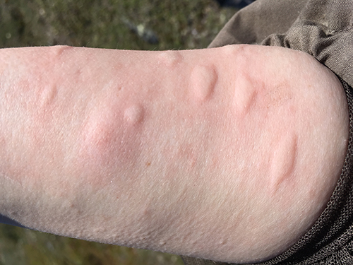 28 June 2016 Arctic Tundra Mosquitoes Polartrec