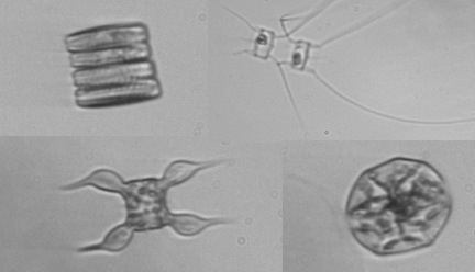 Assorted phytoplankton from the Southern Seas