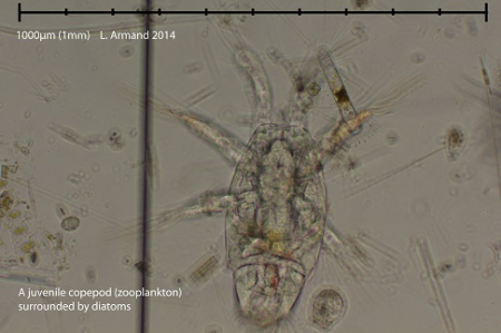 A copepod.A type of zooplankton.