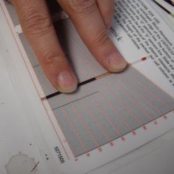 Scientist measuring hematocrit levels